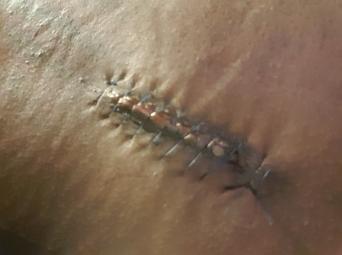 My back scar